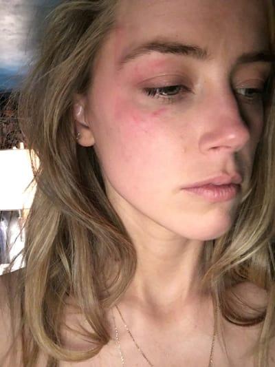 Amber Heard Facial Bruises