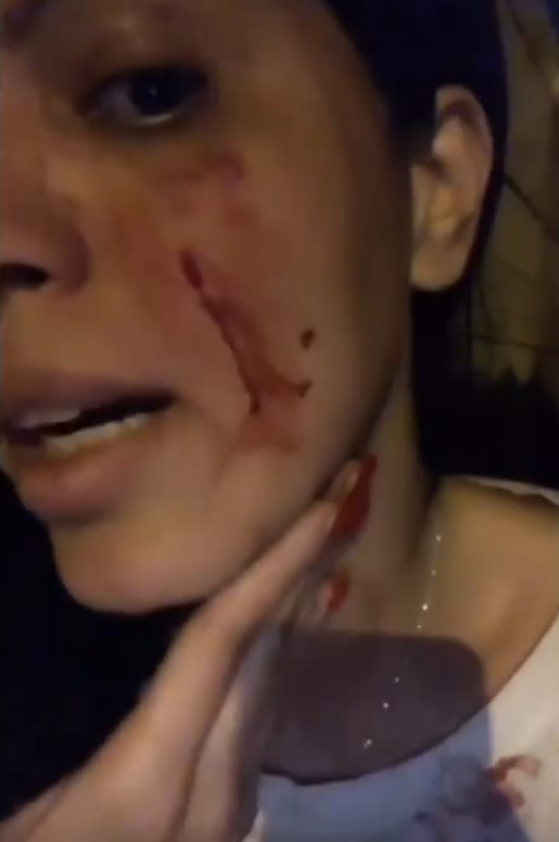Larissa lima shows bloody facial wounds