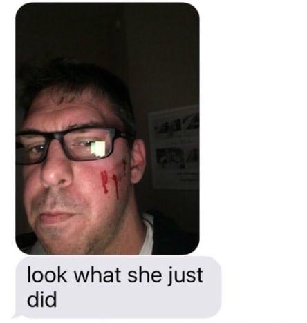Matt Baier Abuse Photo