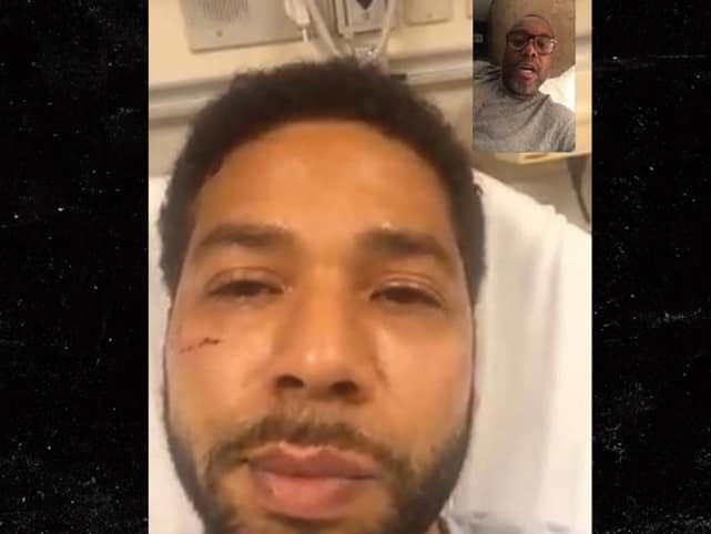 We believe this is a photo of smollett in the hospital