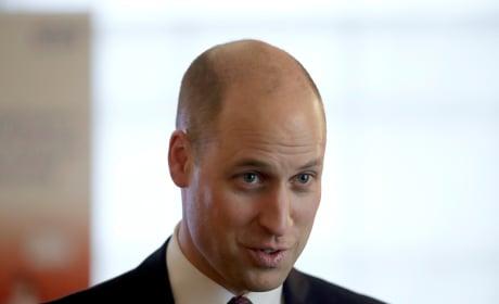 Prince William Bald