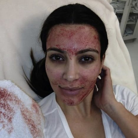 Kim Kardashian Facial Pic