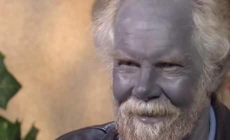 Paul Karason, Man With Blue Skin, Dies