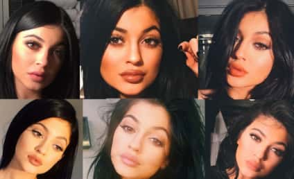 Kylie Jenner and Her Lips: A Timeline of Untruths