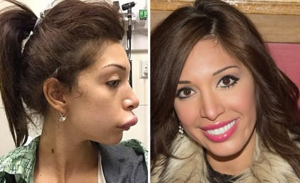 Farrah Abraham Lips: Fixed! Probably Only Botched For Publicity Stunt!