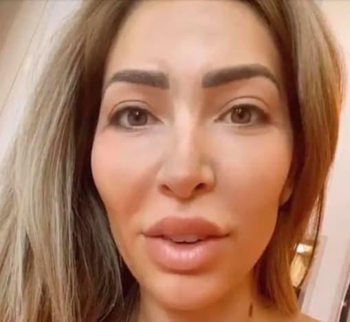 Farrah después de Botox