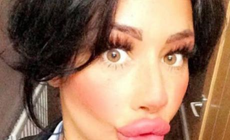 Mother with Enormous Lips Can't Stop Getting Plastic Surgery