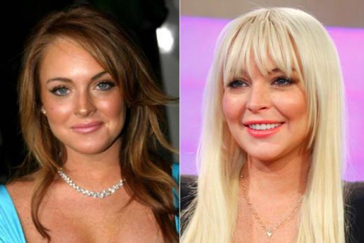 Lindsay Lohan Plastic Surgery?