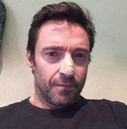 Hugh Jackman Skin Cancer Pic