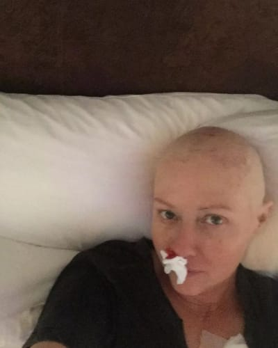 Shannen Doherty Shares Painful Chemo Throwback