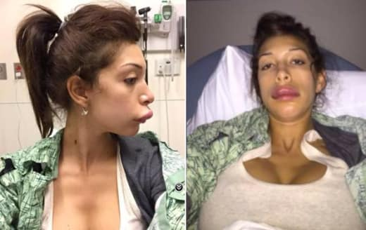 Farrah Abraham Lip Injections Photo