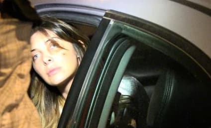 Brittny Gastineau Black Eye Photos: Everybody Look at ME!!