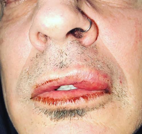 lee lip
