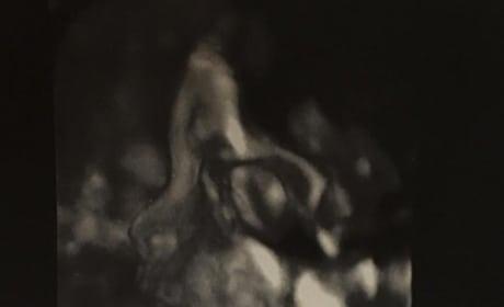 Blac Chyna Sonogram