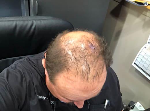 Randy Houska Is Bald
