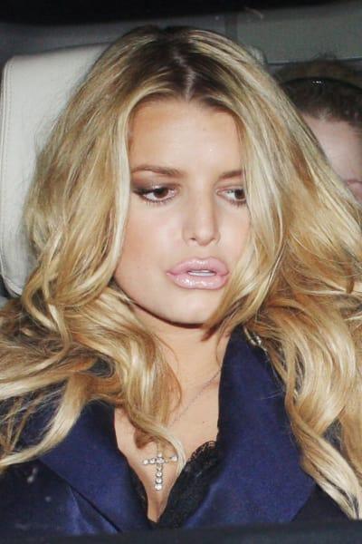 Jessica Simpson Lip Injections