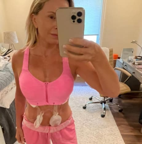 Tamra Judge IG post-implant-removal 01 or 04