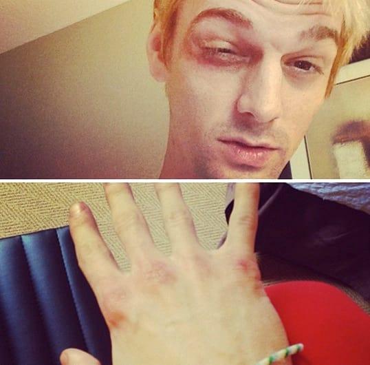 Aaron Carter Beat Up