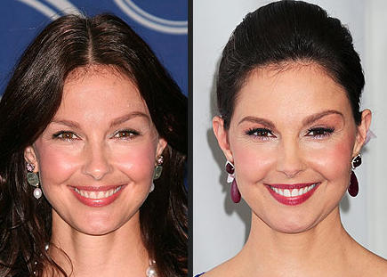 Ashley Judd Puffy Face Photo