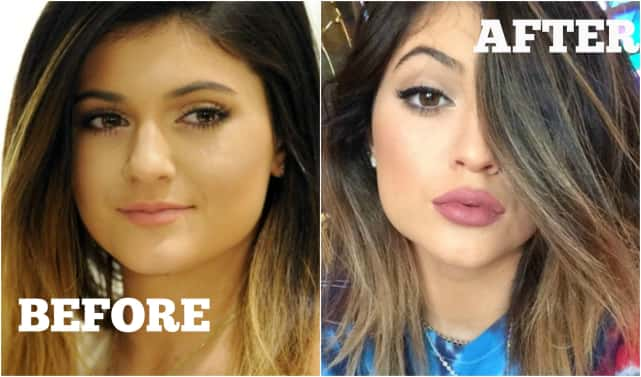 Before & After: Kylie Jenner