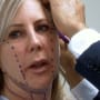 Vicki Gunvalson Goes Under the Knife