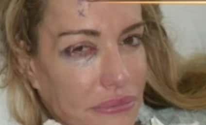 Taylor Armstrong Black Eye Photos: A Hoax?!?