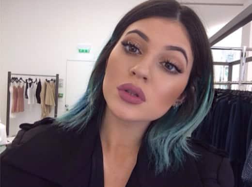 Kylie Jenner's Lips