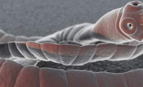 Woman Swallows Tapeworm To Lose Weight