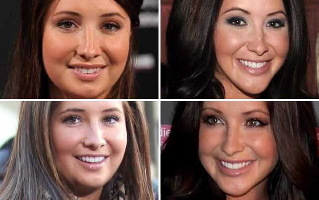 Bristol palin before plastic surgery