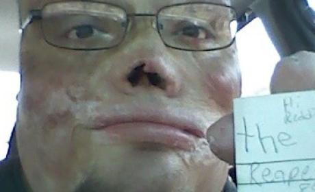 Homeless Burn Victim Inspires Reddit