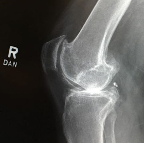 Abby Lee Miller X-Ray