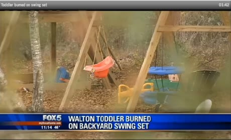 Toddler Burned On Swing Set In Gasoline Fire