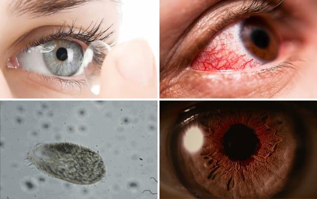 Amoebas eating eyeballs this actually happened contact lenses