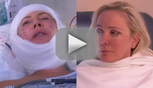 Shannon beador and vicki gunvalson wake up from surgery on this