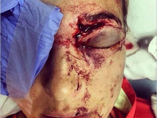 Morgan Injury