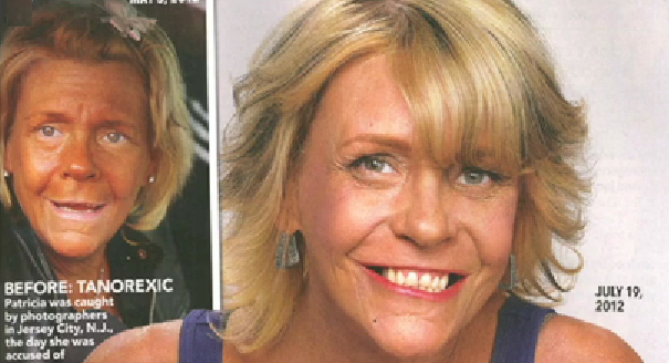 Patricia Krentcil (Tanning Mom) Pale