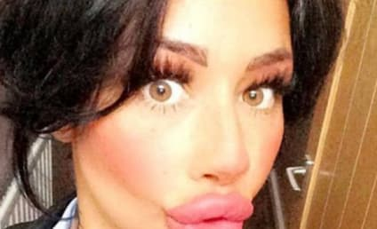 Mother with HUGE Lips Can't Stop Getting Plastic Surgery
