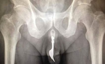 Four-Inch Fork: Removed From Man's Penis!