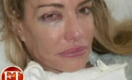 Taylor Armstrong Hospital Photo: Released, Disturbing