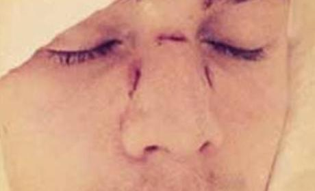 Paris Hilton's Brother Suing Lindsay Lohan