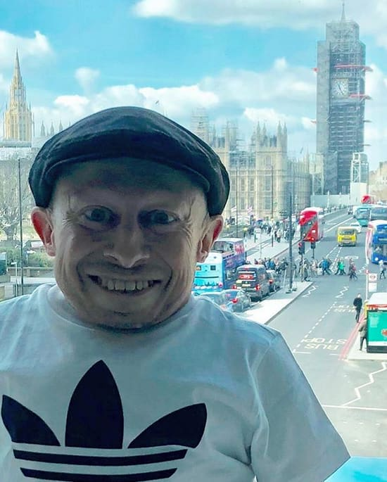 Verne Troyer in London
