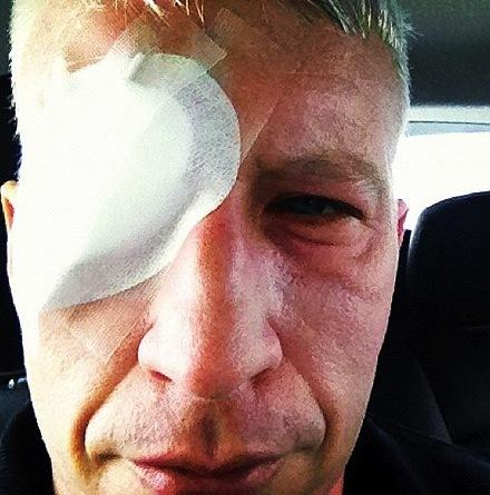 Anderson Cooper Blind