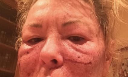 """Roseanne Barr Tweets Bloody Face Photo, Jokes About """"Tussle with Bill Cosby"""""""