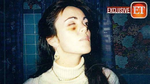 Dina Lohan Black Eye