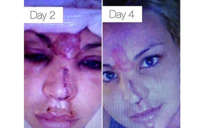 Lisa D'Amato, America's Next Top Model Winner, Destroys Face in Freak Accident
