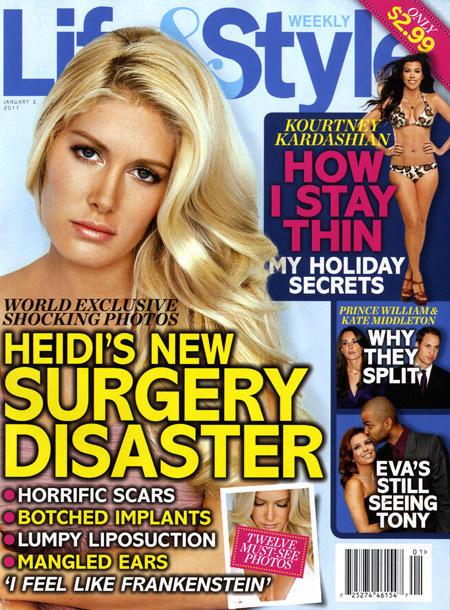 Heidi Montag Surgery Disaster