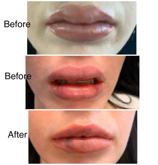 Deavan clegg lip nightmare comparison