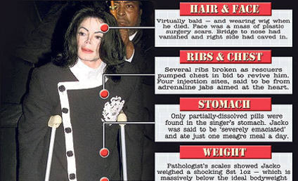 Michael Jackson Autopsy Allegedly Reveals Brittle, Ailing Star