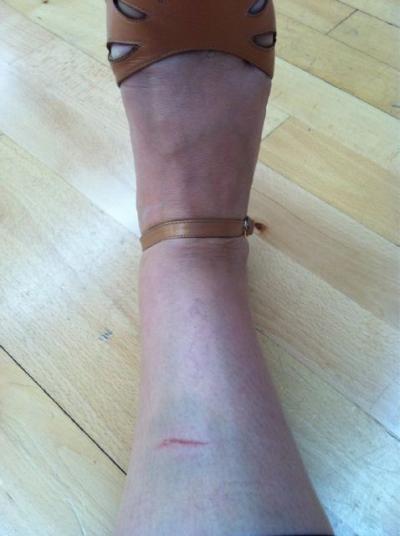 Ricki Lake Injury