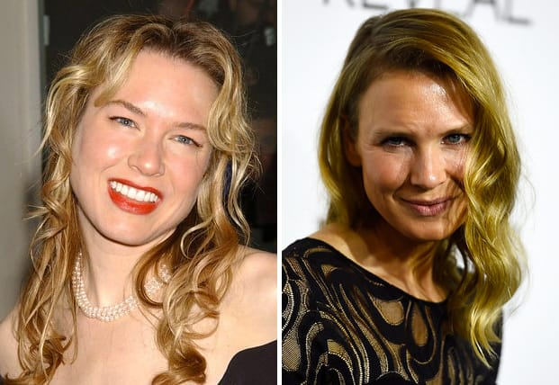 Renee Zellweger Defended By Ex Boyfriend She Looks Like